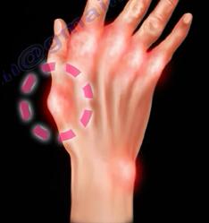 rheumatoid5.png